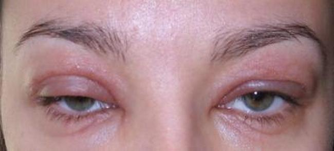 Аллергическая реакция на тени