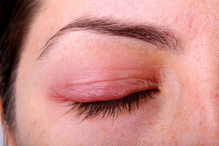 Аллергия на тени для век